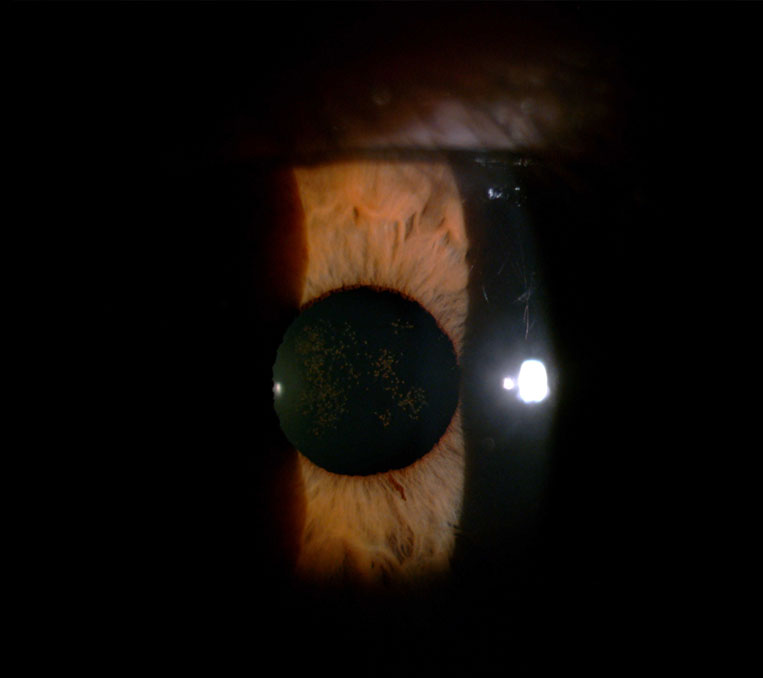 Anterior-eye-photo01